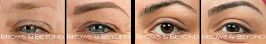 brows-beyond-male-paramedical-gallery-1