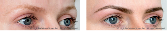 hd-brows-before-and-after-3